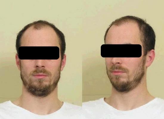 Verdachte moord Els Borst voor het eerst verhoord